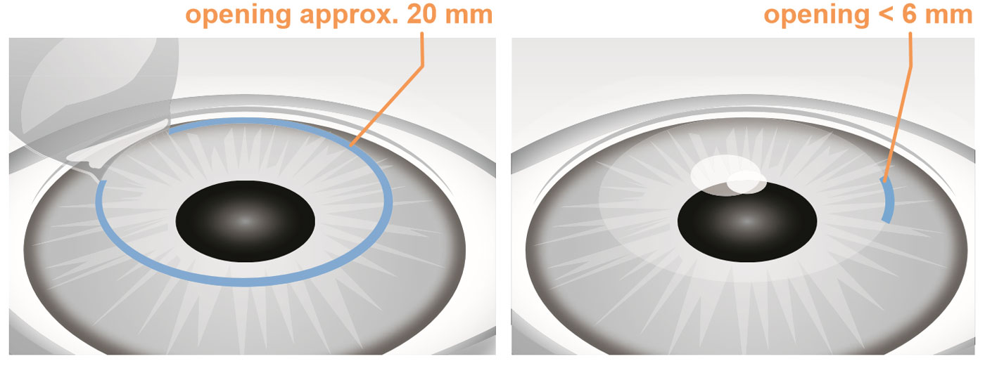SMILE vs LASIK